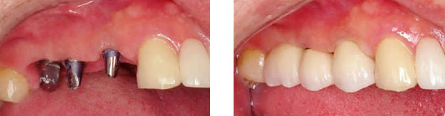 Implant crowns replacing missing back teeth